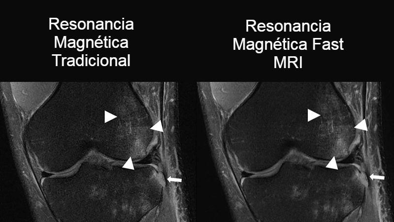 Fast MRI vs MRI convencional